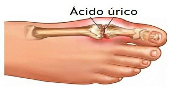 el pulpo tiene acido urico como bajo el acido urico alto acido urico pdf 2012